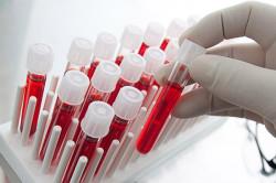 Анализ крови при аденоидах