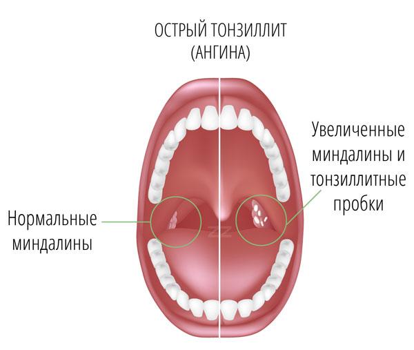 Давление в груди после ангины