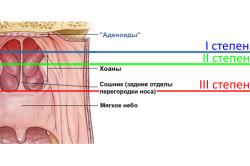 Степени аденоидного воспаления