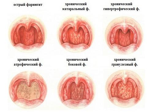 Болезнь паркинсона симптомы лечение прогноз