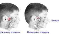 Аденоиды - причина развития ангины