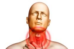 Боль в горле при ларингите