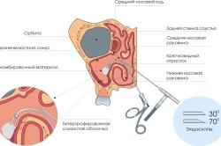 Принцип эндоскопии при аденоидах