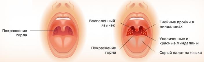 Бактериальная ангина у ребенка