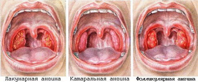 Спазматическая боль в левом боку внизу