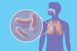 Туберкулез - причина сухого кашля