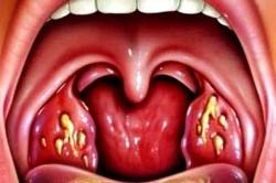Гнойные пробки в горле при фолликулярной ангине