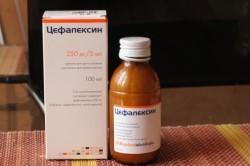 Цефалексин для лечения ангины