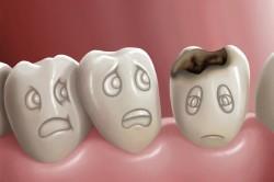 Кариес - причина попадания стафилококка в горло