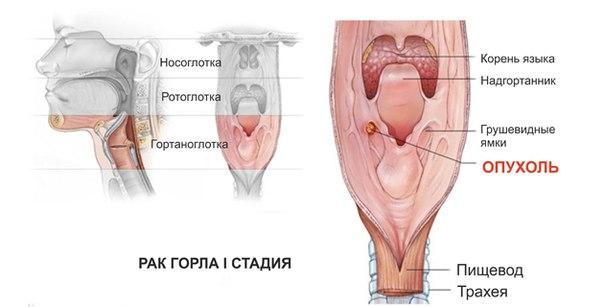 Папиллома вирус передается половым путем