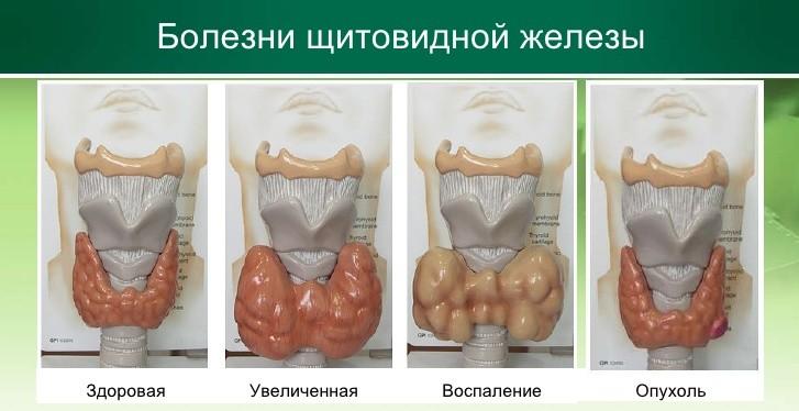 щитовидка запах изо рта