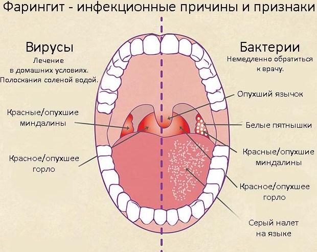 Как быстро и эффективно вылечить горло за 1 день в 14
