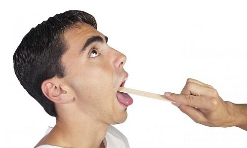 Наличие папиллом в горле